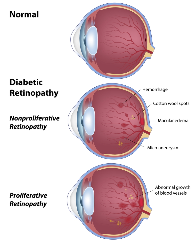 Diabetic Retinopathy South Florida